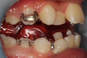 10. removable braces 1