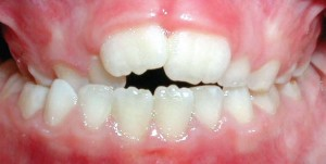 14. crossbite of back teeth
