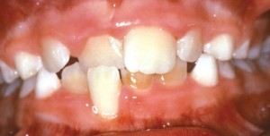 14. crossbite of front teeth