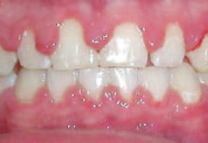 22. advanced gingivitis