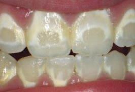 22. decalcification
