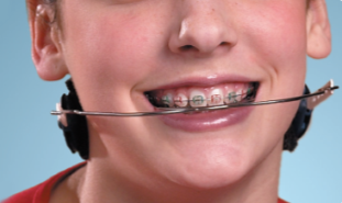 10. removable braces 2